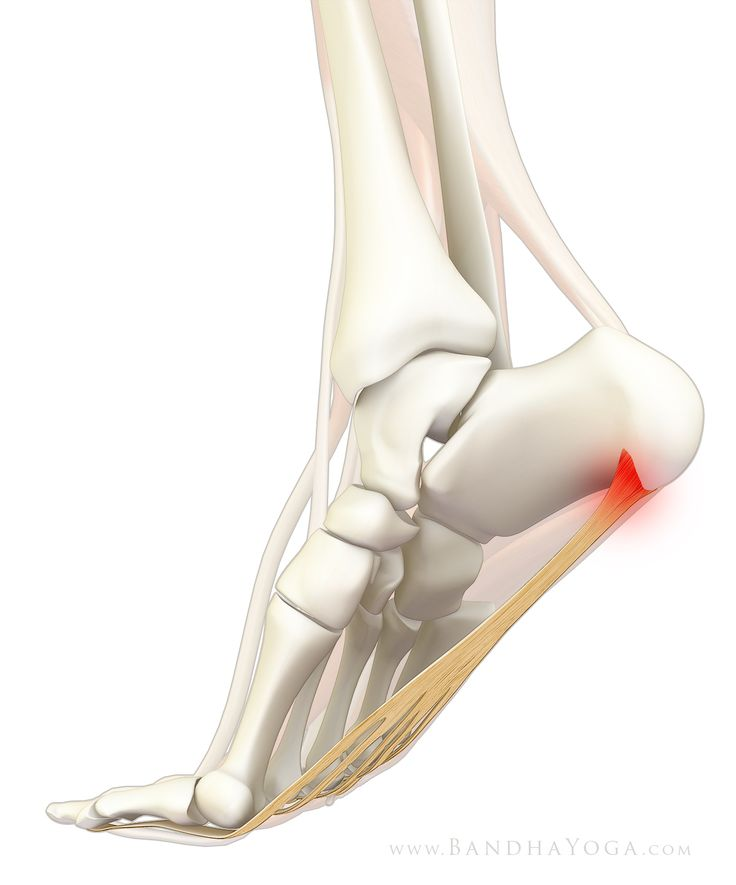 88 best Plantar Fasciitis, Heel Spurs & Foot Pain images on ...