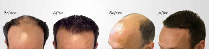 Profile hair transplant is one of the best hair transplant clinic all over the india. If anyone interested to get best hair transplant centre in india then you can visit our website. We have well experienced team of doctors that can give you every type of the hair transplant surgery at affordable prices.
