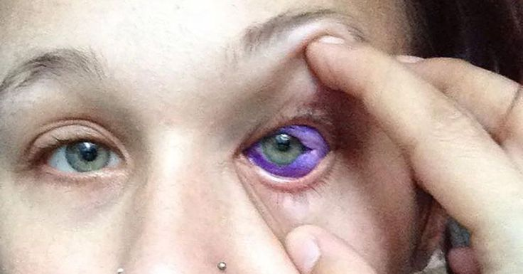 Catt Gallinger, a model from Ottawa, Ontario, recently took to Facebook with a warning about a new trend called sclera tattooing. If you're not the best when it comes to anatomy, the sclera is the white part of the human eye, and people have recently started getting them tattooed.   If done incorrectly, the process can lead to permanent blindness and eye loss. And that's an outcome Gallinger may be facing after she claimed that her tattoo artist used undiluted ink and over injected ink.