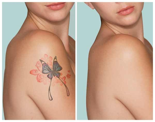 Free video reveals shocking method to remove tattoos naturally and safely! From home and without laser. The laserless tattoo removal guide. Laser removal damages skin cells When you go into a laser removal consultation, either the doctor or his...