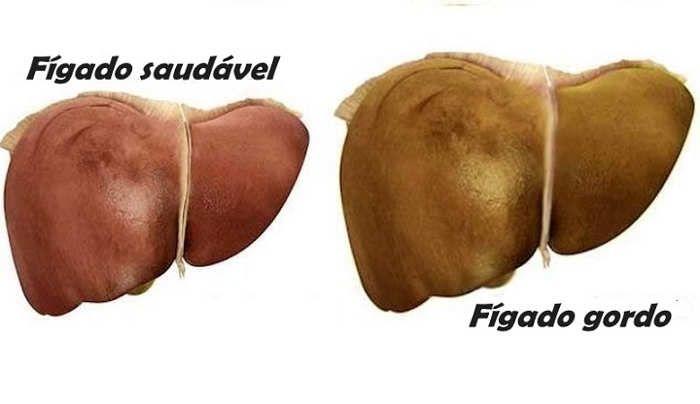 O fígado é um órgão muito importante para eliminar toxinas. Além disso, possui várias funções, como: 1. Sintetiza glicose, proteína e enzimas 2. Armazena n