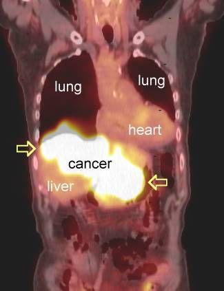 metastáze v plicích PET
