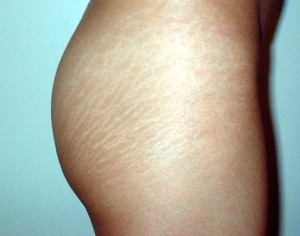 Stretch marks are generally scars in the top of skin. They often look immediately after a pregnancy as well as various other times involving speedy skin growth  http://mystretchmarks.com