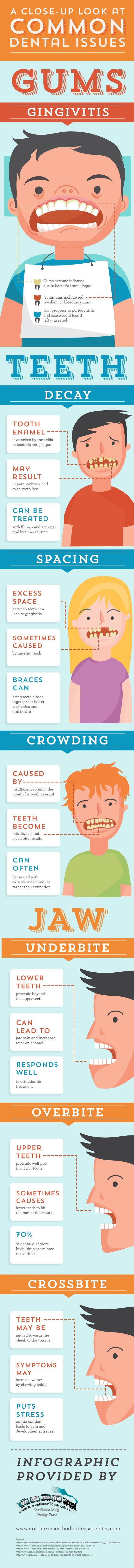 Acids found in bacteria and plaque can attack the tooth enamel, resulting in tooth decay. This condition can result in pain, cavities, and even tooth loss. Check out this infographic from an orthodontist in Allen for more facts about common dental problems.