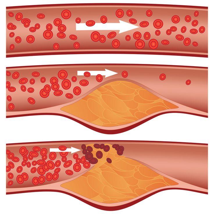 Sníží krevní tlak, vyčistí cévy od tuků a usazenin, to vše umí tento přírodní lék! - Vitalitis.cz