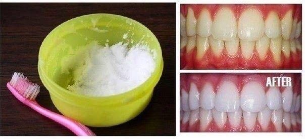 Δες πως να λευκάνεις τα δοντια σου με φυσικό τρόπο με 2 υλικά  που εχεις σιγουρα στο ντουλαπι σου