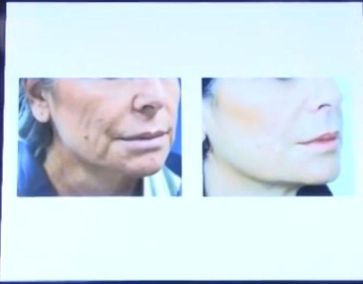 Roul Novelli, lifting con fili in chirurgia estetica