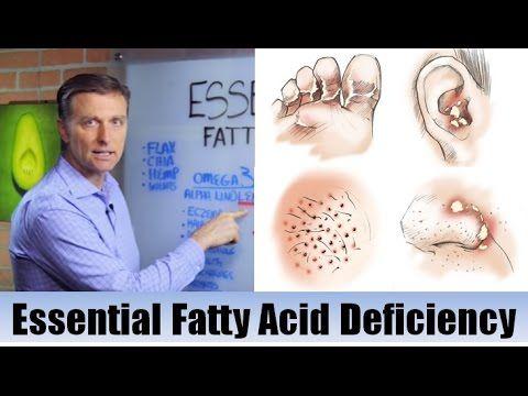 Dr. Berg explains Essential Fatty Acid Deficiency
