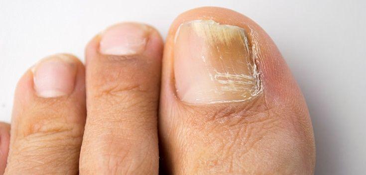 Infekce nehtů, která je také známá jako Onychomycosis je běžná houbová infekce, která může být způsobena řadou důvodů. Prvním pozorovaným příznakem způsobeným touto infekcí je vyblednutí, nebo změna barvy špičky nehtu na žlutou, bílou, nebo hnědou. Dnes Vám prozradíme některé z nejlepších domácích léků, které slouží k účinnému odstranění této a podobných infekcí! 1) Ocet …