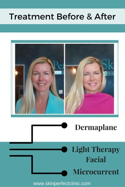 Before and After pictures showing the results of some of our Skincare treatments: Dermaplane, Light Therapy Facial, Microcurrent Click the link to read her thoughts on all of the services, and what they did for her skin. Beauty l Facials l Dermaplaning l Spa l Professional l Makeup l @skinperfectspa