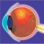 Las enfermedades oculares – resumen