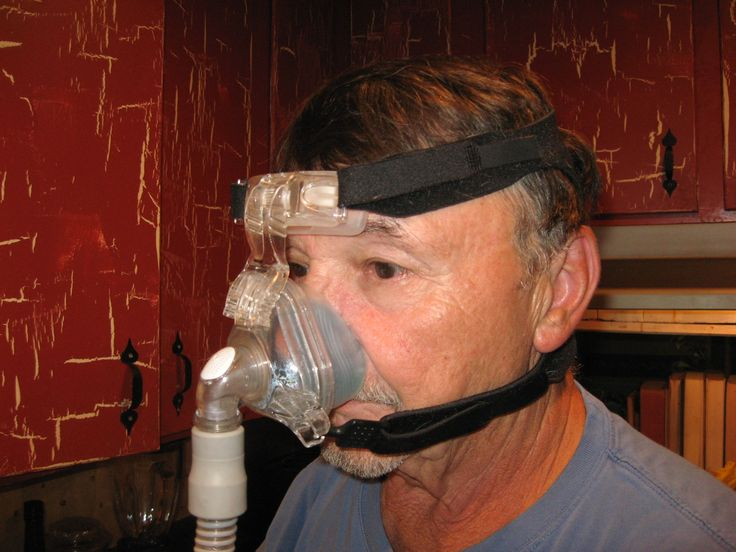 Sleep Apnea - Symptoms, Tests, Diagnosis, and Treatment Options Updated on August 20, 2013
