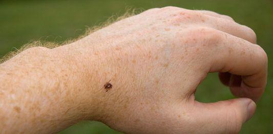 Tick bite – How to react?