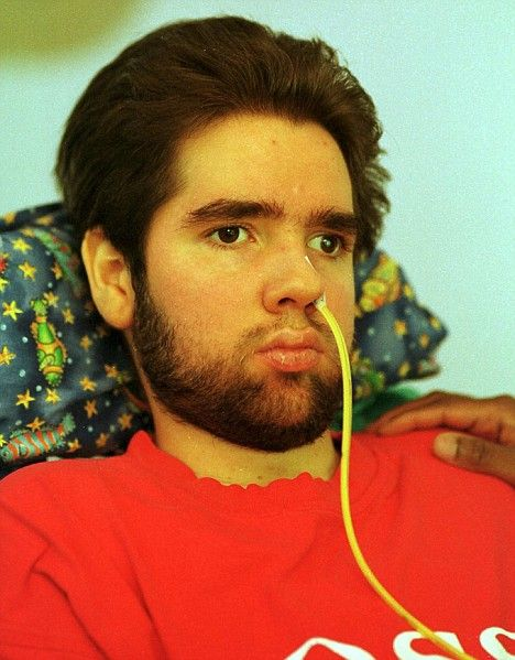 The boy who inspired Lorenzo's Oil dies...22 years after doctors predicted