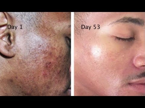 Get Rid Of The Stains, Spots, And Hyperpigmentation With This Natural Recipe…