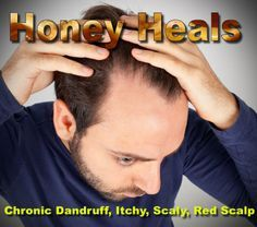 Honey Heals Chronic Dandruff, Scaly, Itchy Scalp (Seborrheic Dermatitis)