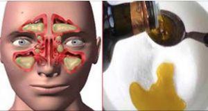 """Lo llaman """"LA BOMBA"""", el remedio para quitar la congestión nasal, la sinusitis y la gripe ¡en un solo día!   Salud con Remedios"""