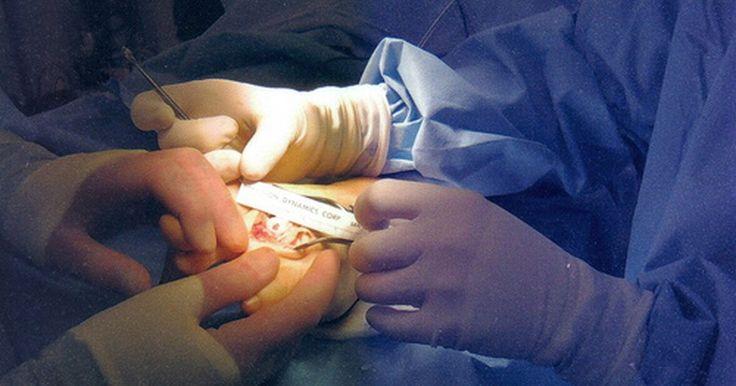O que é a cirurgia de microfratura do joelho?. A cirurgia de microfratura do joelho é um procedimento feito para reparar lesões na cartilagem desta região e, costumeiramente sendo feita em pessoas com pequenas lesões na cartilagem, pode ainda prevenir a necessidade de uma substituição parcial ou total do joelho.
