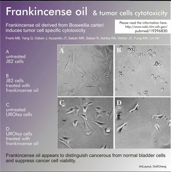 Frankincense oil vs. Tumor Cells - I believe in this 100%. I can only speak from my limited experience with frankincense, my dog had a fatty growth on her shoulder and I have been putting frankincense on it topically twice daily and the growth is down to 1/10 of it's original size and is still shrinking!