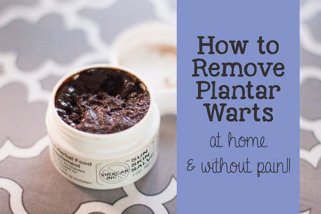 how to get rid of warts on feet at home