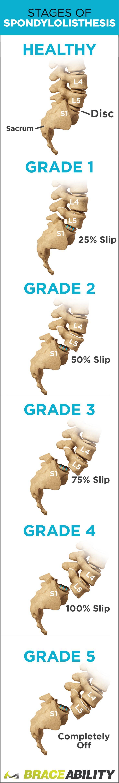 What is spondylolisthesis? Learn how spondylolisthesis is diagnosed, treatment options, symptoms, causes & the different levels: grade I, grade II, grade III, grade IV, & grade V.   BraceAbility