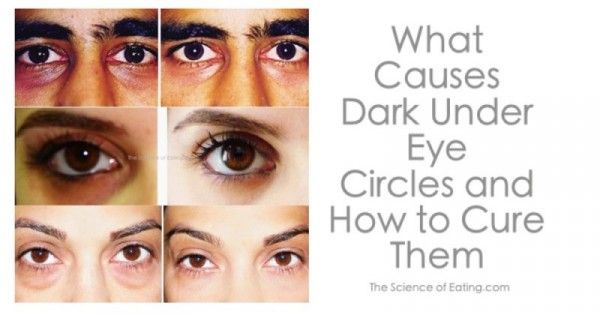 How To Cure Dark Under Eye Circles