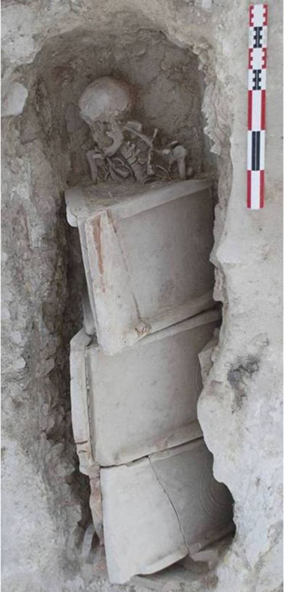 In a necropolis in Spain, archaeologists have found the remains of a Roman woman who died in her 30s with a calcified tumor in her pelvis, a...