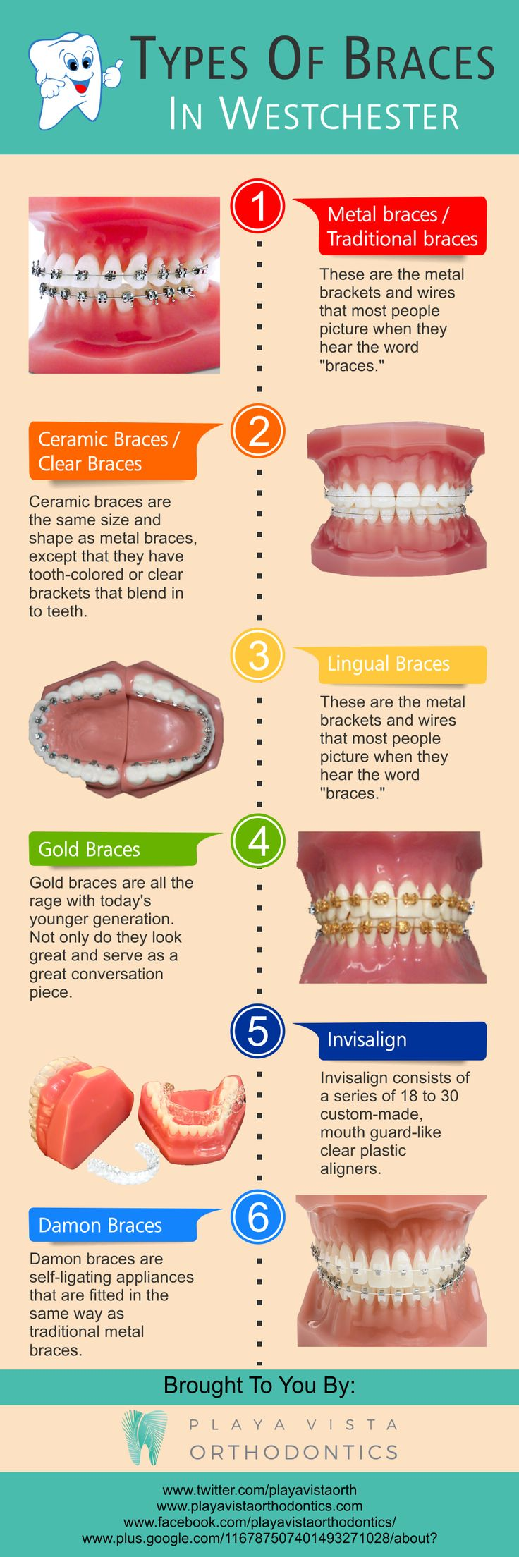 Getting #braces to help straighten your #teeth no longer means needing to have a mouthful of #wires. Have you ever found yourself in a position where you are thinking about the type of braces in #Westchester that you would want to have for your child or even for yourself? Your #orthodontist can recommend the best type of braces to help with your straighten and correct any dental issues you have.
