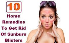10 Home Remedies To Get Rid Of Sunburn Blisters