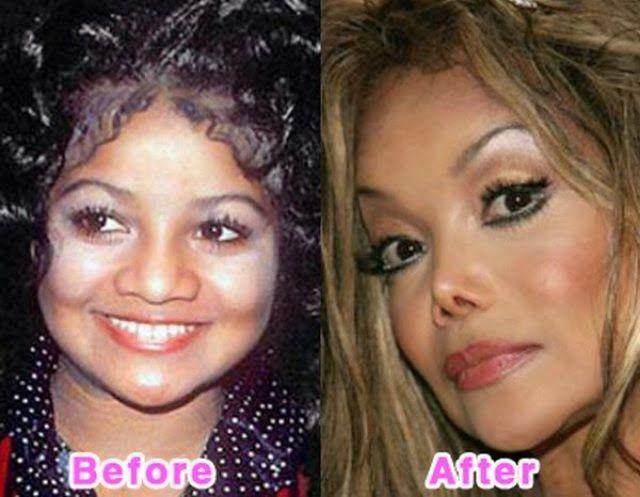 Uk Celebrity Gossip New Magazine Plastic Surgery Bad Surgery Celebrities Bad Celebrity Plastic Surgery Celebrity Plastic Surgery Celebrity Surgery