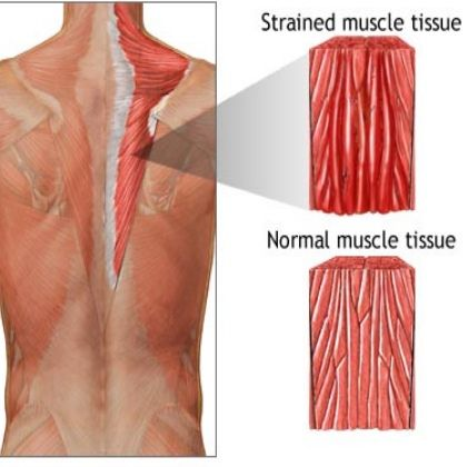 how to fix a pulled muscle in lower back