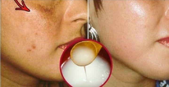 Finalmente você terá um rosto livre de manchas com esta receita natural! | Cura pela Natureza