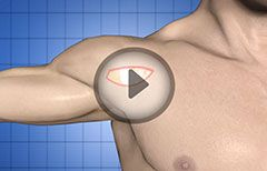 Shoulder Joint Arthroscopy (Therapeutic)