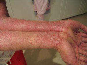 Gambar Tips Mengobati Penyakit Kulit Eksim