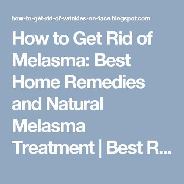 how to get rid of melasma on nose
