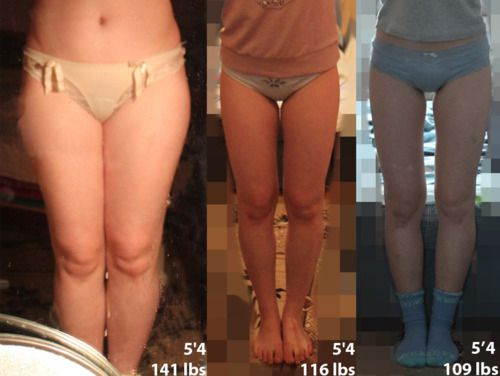 thigh fat loss before and after