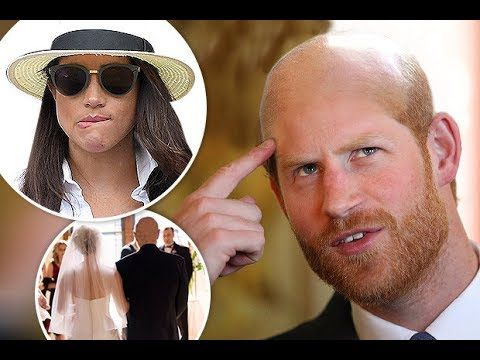 Prince Harry could be BALD by the time he walks Meghan up the aisle
