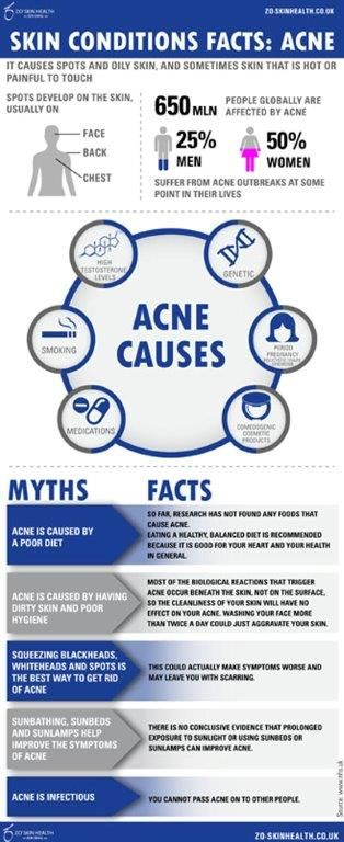 #myths and #facts about #acne #zo #skin