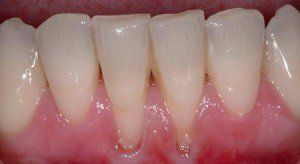 regrow gumline - Have great hygene , brush and floss regularly but gums receding. receding gums not always from gum disease, could be vitamin def.
