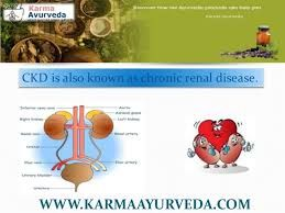 Kidney treatment in Ayurveda At karma Ayurveda we have very effective ayurvedic treatment that can clean these channels and reduces swelling and rejuvenates the kidney. Check out more details here: http://bit.ly/karma111 See more videos on You Tube channel: http://bit.ly/296UwAe