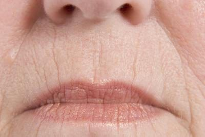 Home Remedies to Plump the Wrinkles on the Face