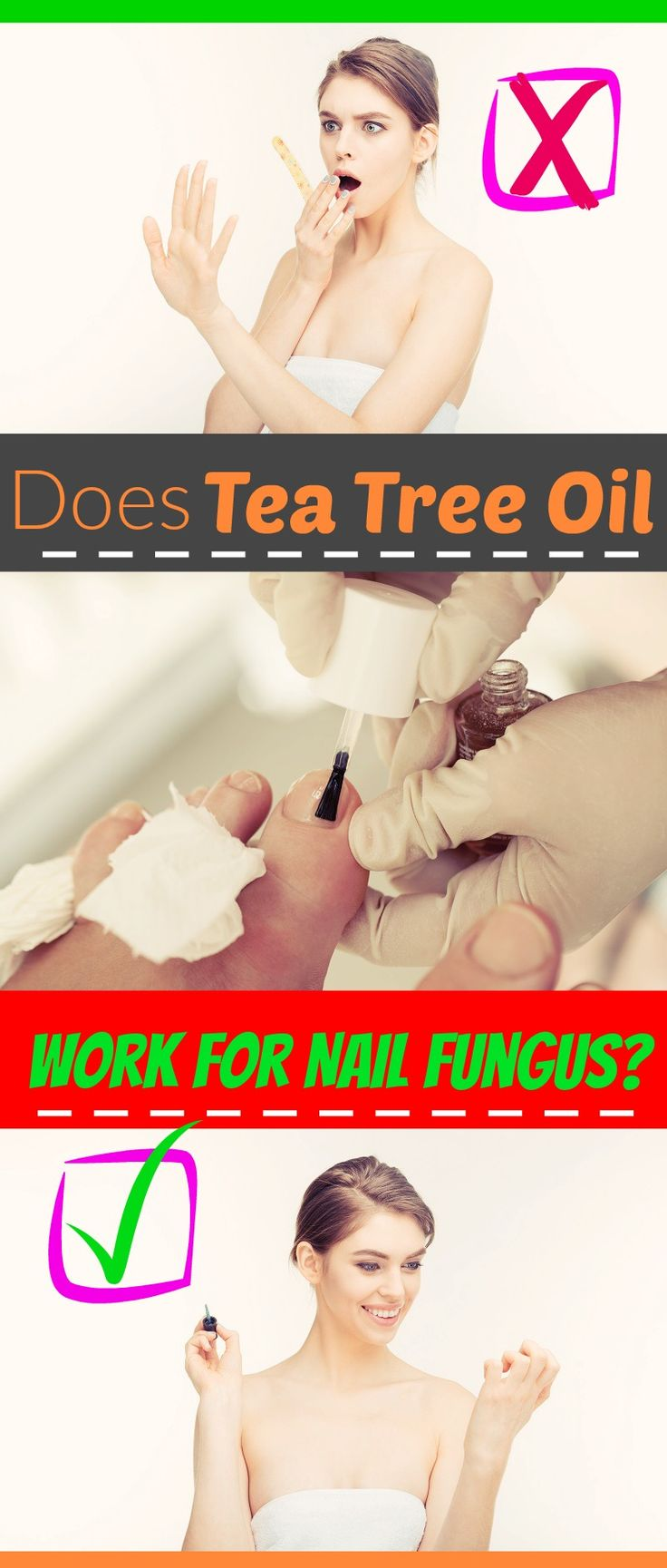Does Tea Tree Oil Work for Nail Fungus? Tea tree oil can be helpful to eliminate or reduce the symptoms of toenail or fingernail fungus...