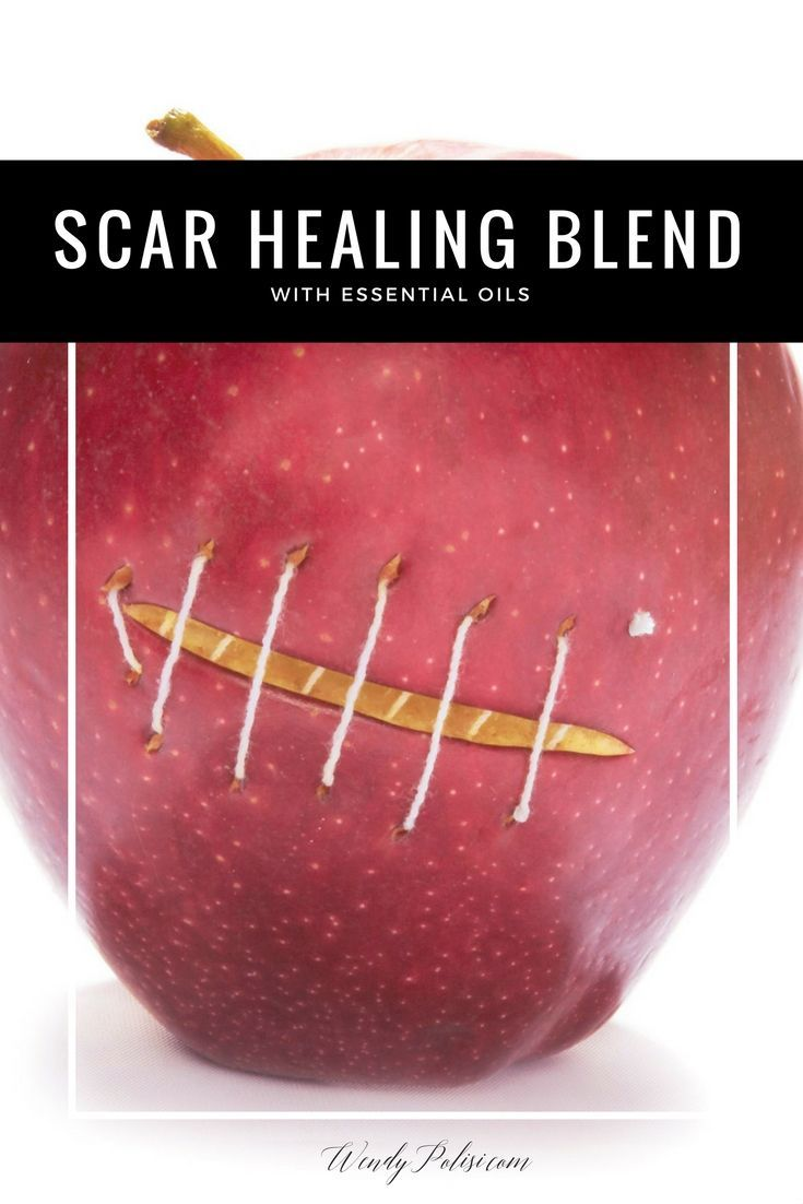 Scar Healing Blend with Essential Oils - This Scar Healing Blend with essential oils is a great natural way to help make your scars less noticeable. Treat your scars right with helichrysum, frankincense, myrrh and geranium.   via @wendypolisi