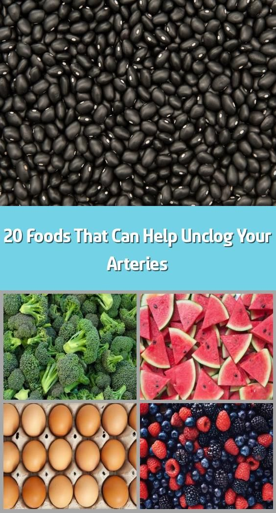 20 Foods That Can Help Unclog Your Arteries