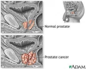Various studies show that turmeric can help in prevention of prostate cancer and also as an adjunct treatment.