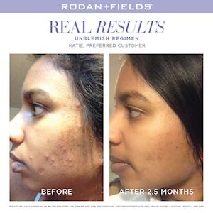Take control of adult acne with UNBLEMISH Regimen. A complete Multi-Med® Therapy solution, the UNBLEMISH Regimen is clinically proven to help stop blackheads and pesky pimples before they become visible on skin's surface.