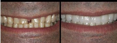 """Dental Implants A dental implant is a """"root"""" device, usually made of titanium, used in dentistry to support restorations that resemble a tooth or group of teeth to replace missing teeth."""