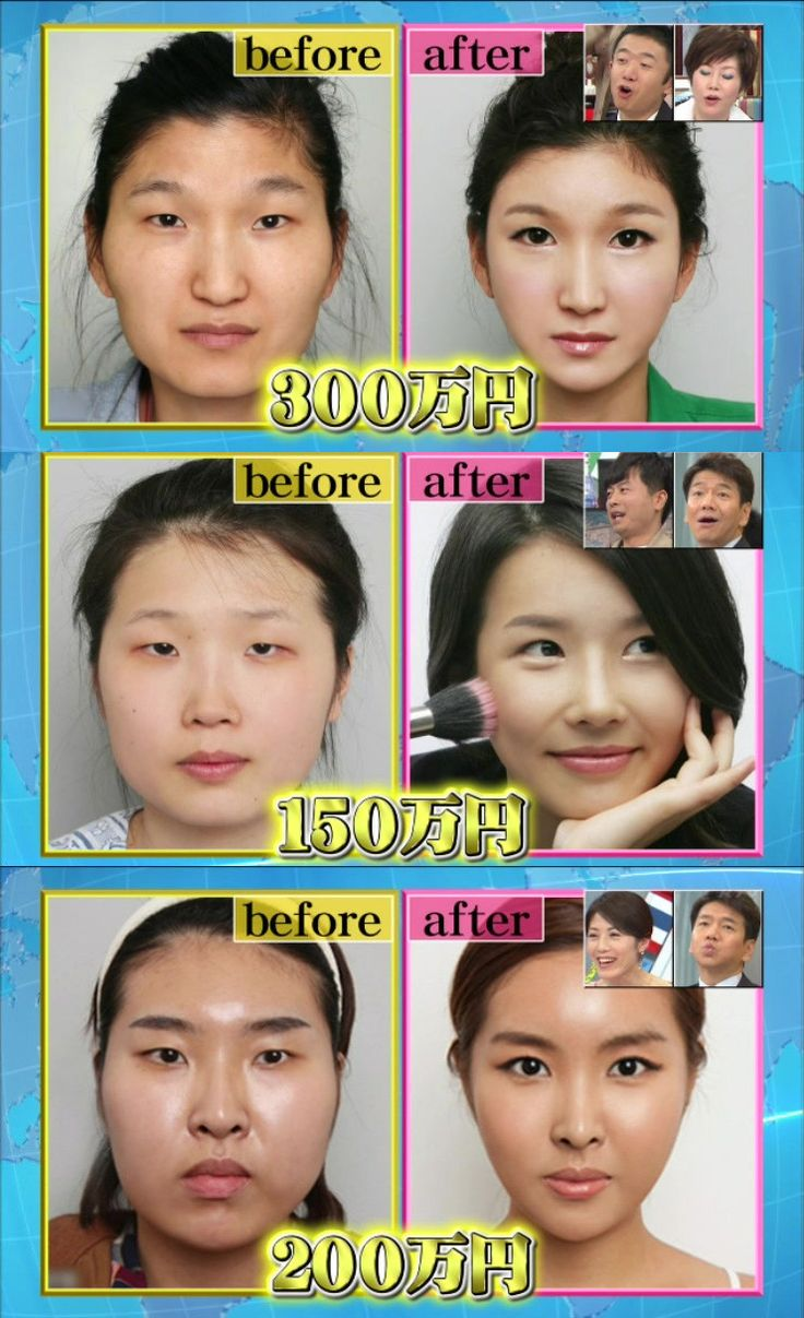 23 Best Images About Plastic Surgery Before And After On