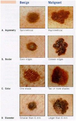 Skin Cancer – causes, symptoms, treatment, prevention @John Linder - with our history, we better pay attention to this!