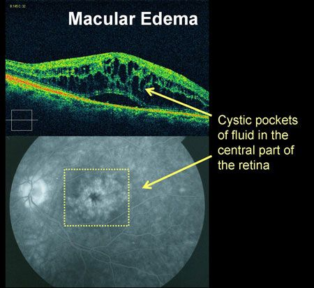 Macular edema is swelling and thickening of the macula (the central portion of the retina) caused by, for example: inflammation, fluid leakage from damaged blood vessels inside/under the retina and macular pucker or wrinkling.